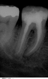 Endodontie5