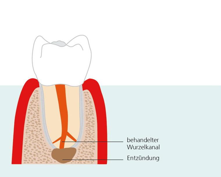 endodontische-chirurgie-1