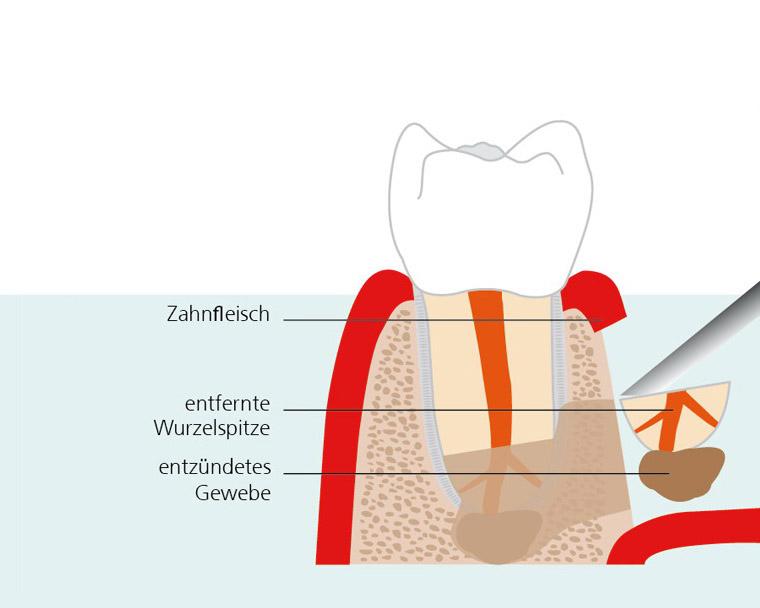 endodontische-chirurgie-2