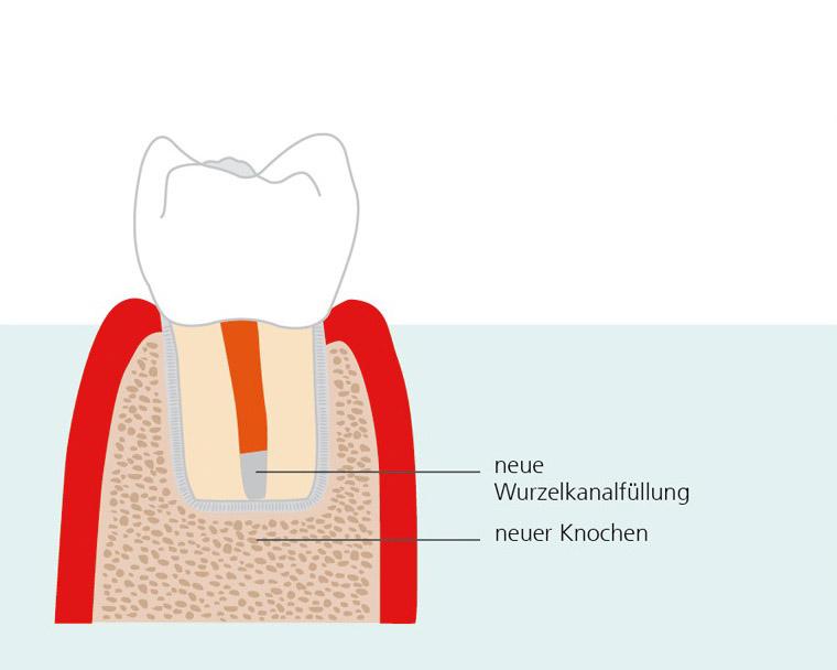 endodontische-chirurgie-3